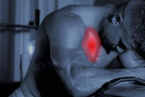DOMS – Indolenzimento muscolare a insorgenza ritardata – Corebo(R)