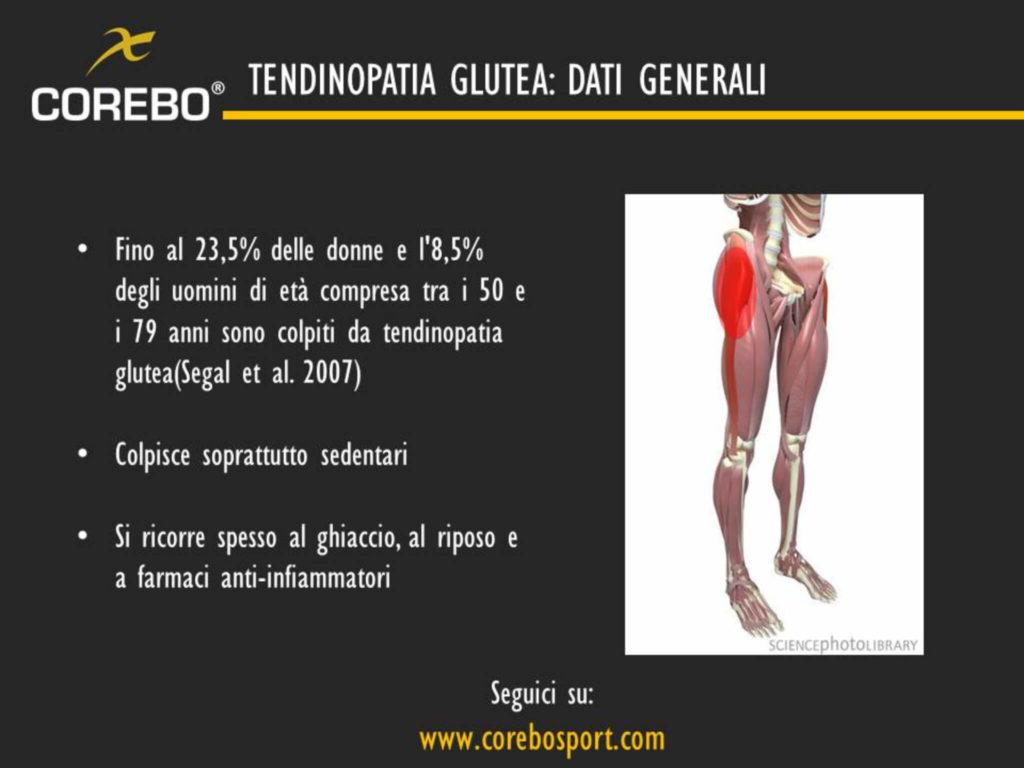 tendinopatia glutea