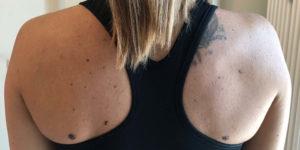 Tilt anteriore di spalla: aspetti metodologici