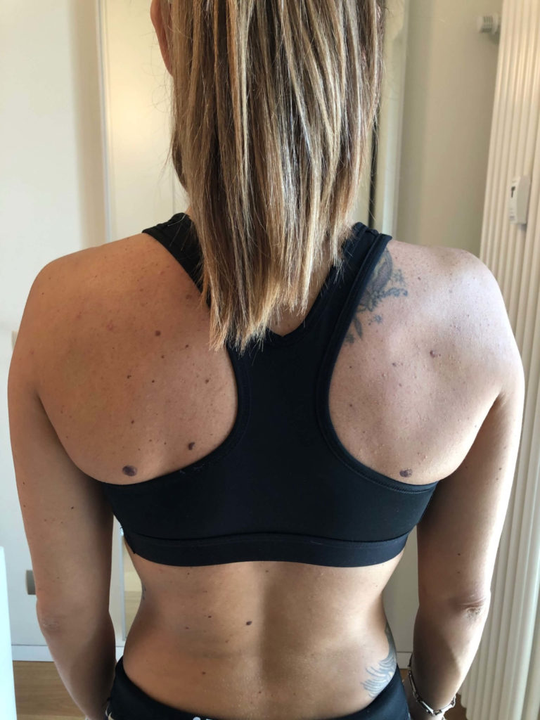 Tilt anteriore di spalla