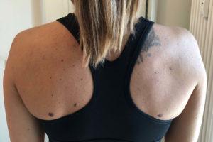 Tilt anteriore di spalla – Corebo